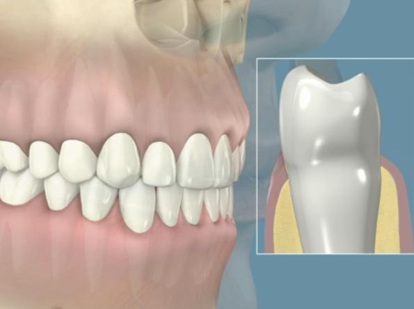 paradontite - Odontoiatrica Urciuolo - Studio dentistico Ladispoli - dentista