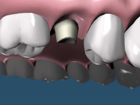 protesi - odontoiatrica urciuolo