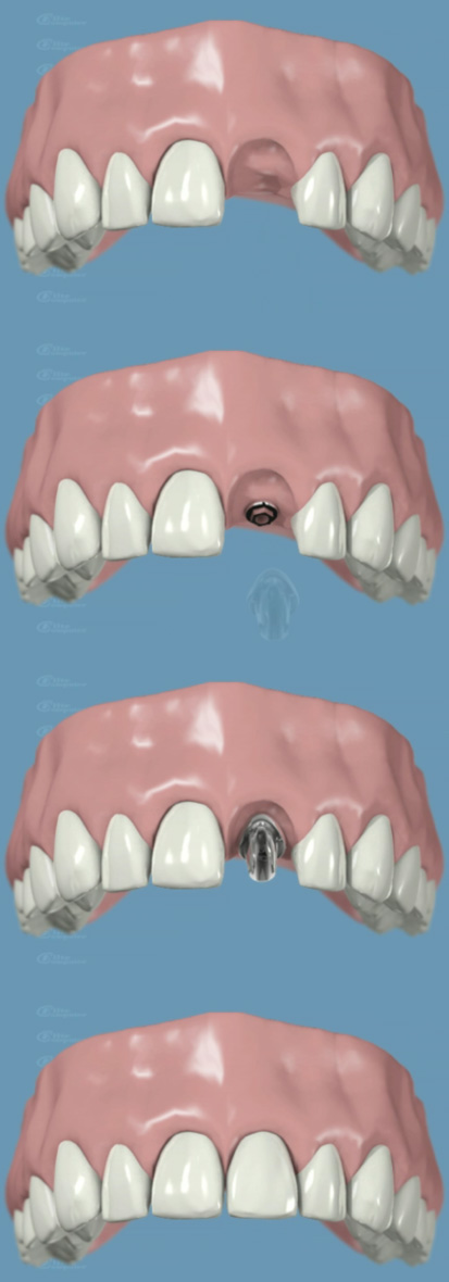 impiantologia - Odontoiatrica Urciuolo - Studio dentistico Ladispoli - dentista