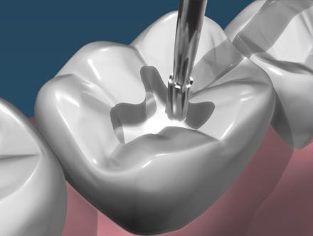 conservativa - odontoiatrica urciuolo