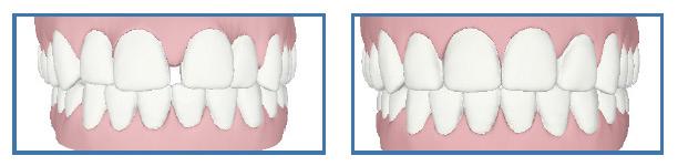 Ortodonzia - Odontoiatrica Urciuolo