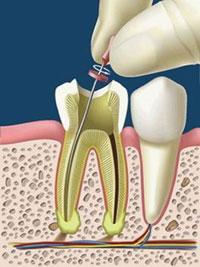 endodonzia - odontoiatrica urciuolo