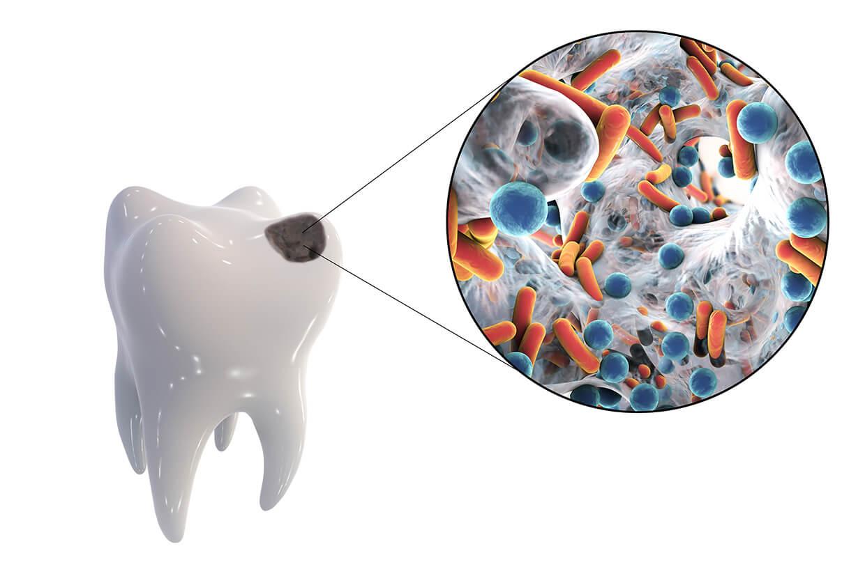 dente_cariato_3D – Odontoiatrica Urciuolo